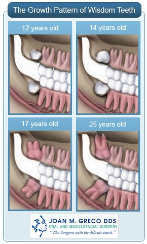 Wisdom Tooth Removal Dr Joan Greco Dds