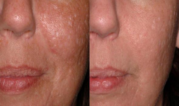 Laser Acne Scar Removal Dr Joan Greco Dds