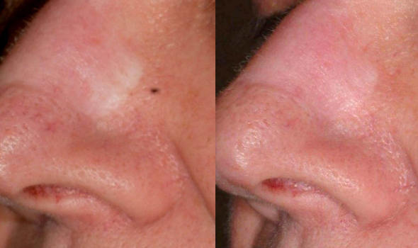 Laser Acne Scar Removal Dr Joan Greco Dds
