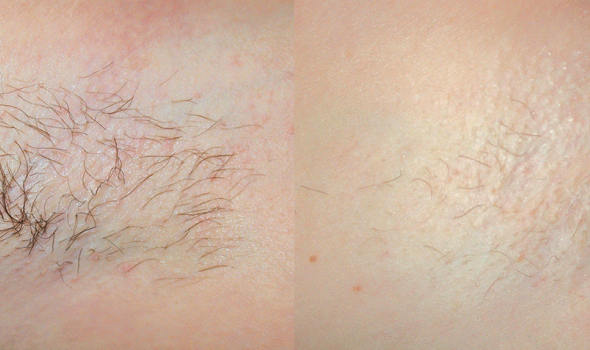 hair-removal-2