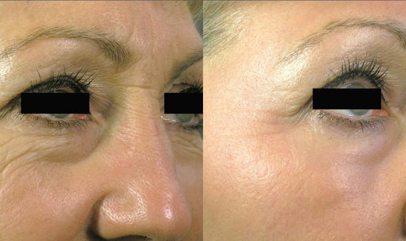 wrinkle-treatments-smartskin-2